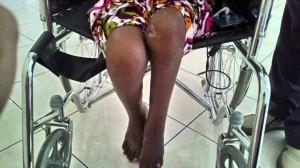 kaki TKW yang disiksa oleh majikannya.