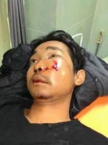Andri korban pemukulan polisi